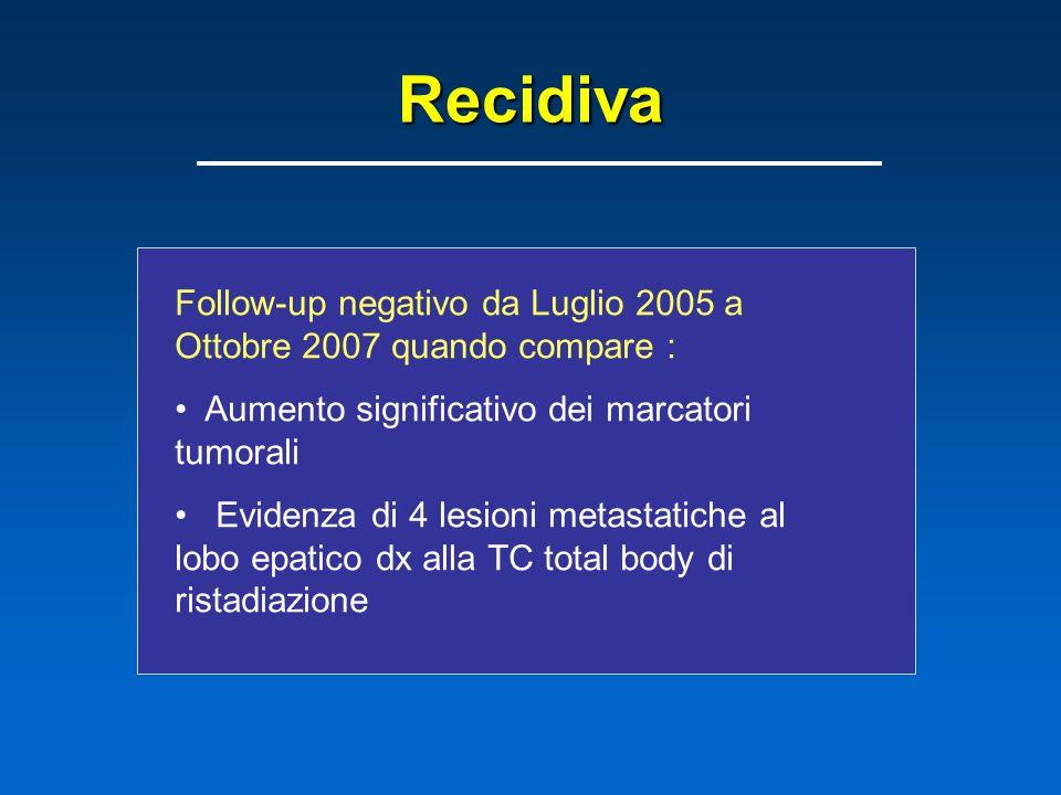 Recidiva Follow-up negativo da Luglio 2005 a Ottobre 2007 quando compare : Aumento significativo dei marcatori tumorali Evidenza di 4 lesioni metastatiche al lobo epatico dx alla TC total body di ristadiazione