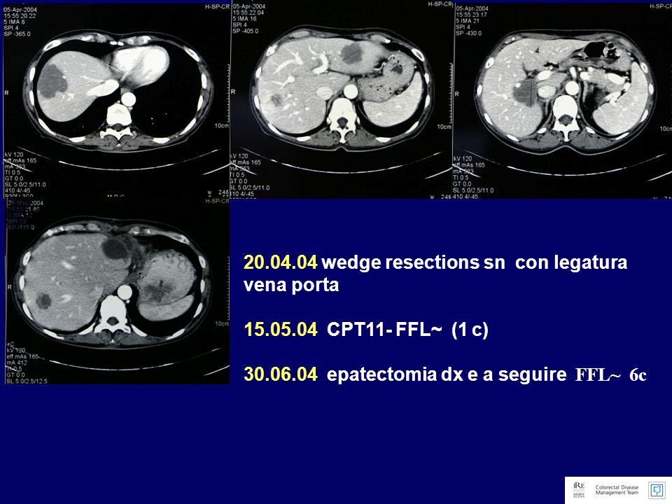 Novembre 2005 comparsa di metastasi polmonari millimetriche: 2 noduli a sx (7 mm lobo sup.