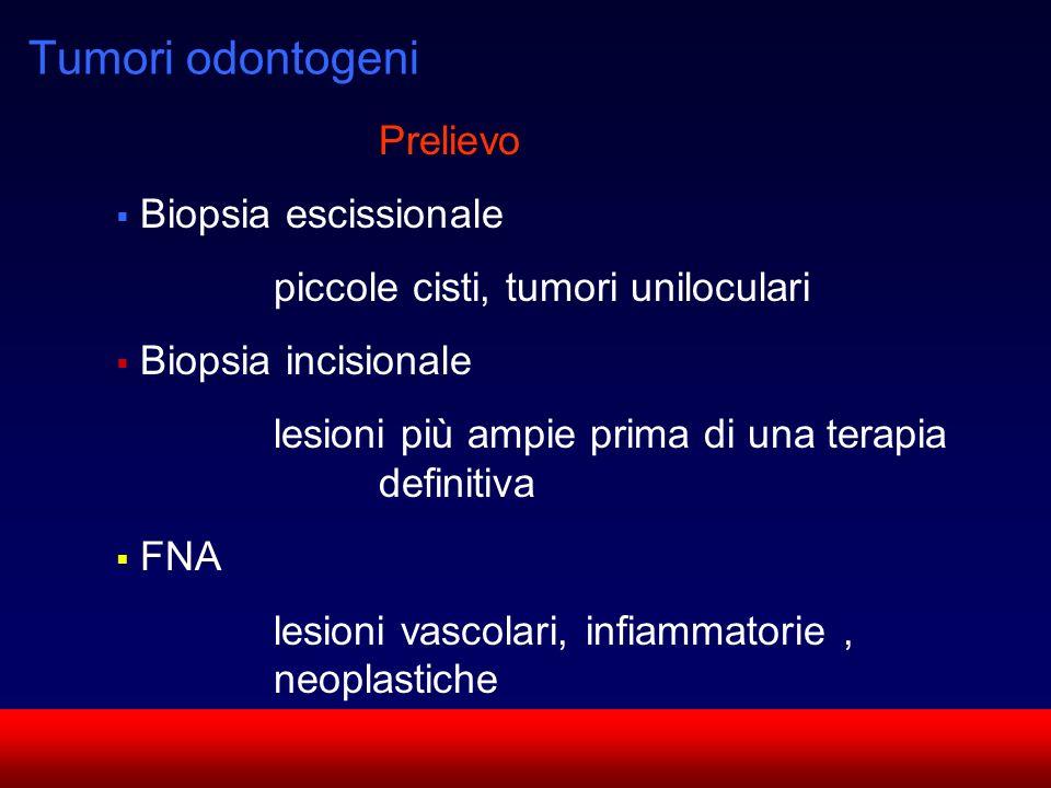 SUN CMF Tumori odontogeni Prelievo Biopsia escissionale piccole cisti, tumori uniloculari Biopsia incisionale lesioni più ampie prima di una terapia d