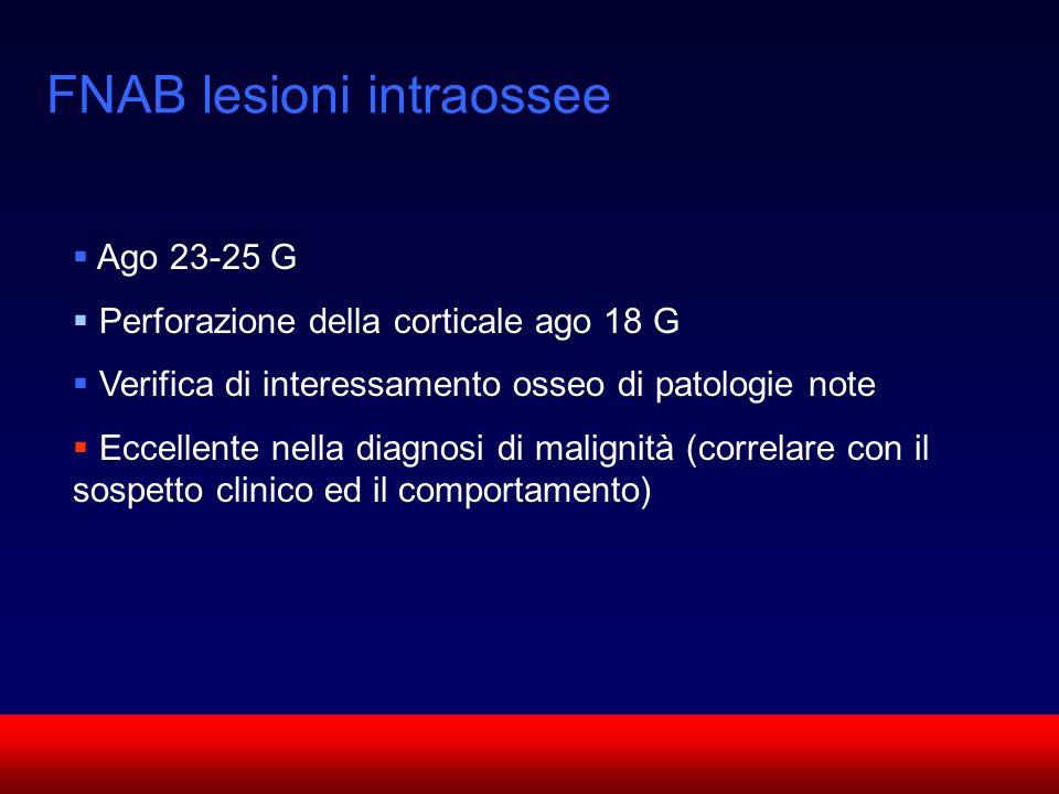 SUN CMF FNAB lesioni intraossee Ago 23-25 G Perforazione della corticale ago 18 G Verifica di interessamento osseo di patologie note Eccellente nella