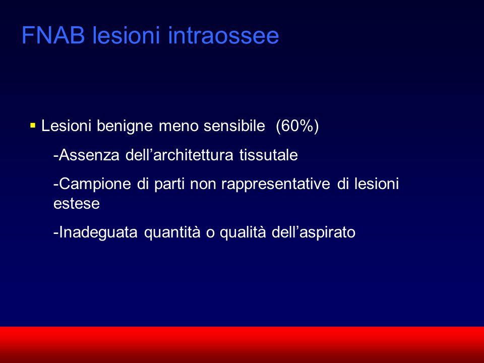 SUN CMF FNAB lesioni intraossee Lesioni benigne meno sensibile (60%) -Assenza dellarchitettura tissutale -Campione di parti non rappresentative di les