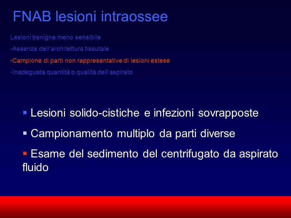 SUN CMF FNAB lesioni intraossee Lesioni benigne meno sensibile -Assenza dellarchitettura tissutale -Campione di parti non rappresentative di lesioni e