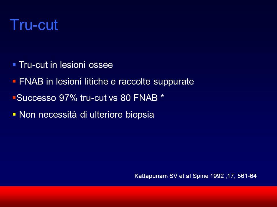 SUN CMF Tru-cut Tru-cut in lesioni ossee FNAB in lesioni litiche e raccolte suppurate Successo 97% tru-cut vs 80 FNAB * Non necessità di ulteriore bio