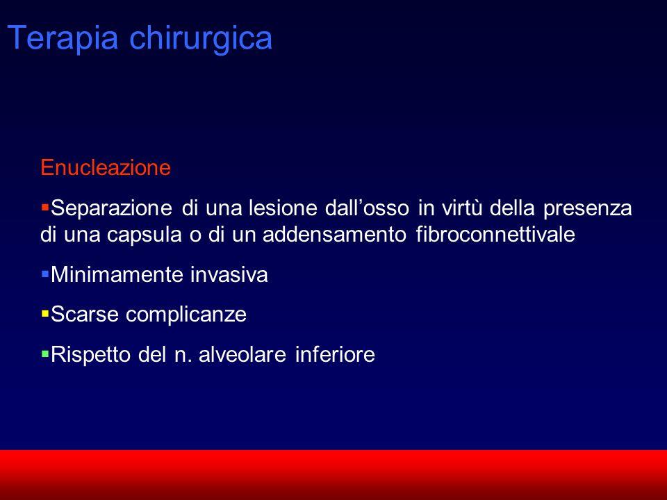 SUN CMF Terapia chirurgica Enucleazione Separazione di una lesione dallosso in virtù della presenza di una capsula o di un addensamento fibroconnettiv
