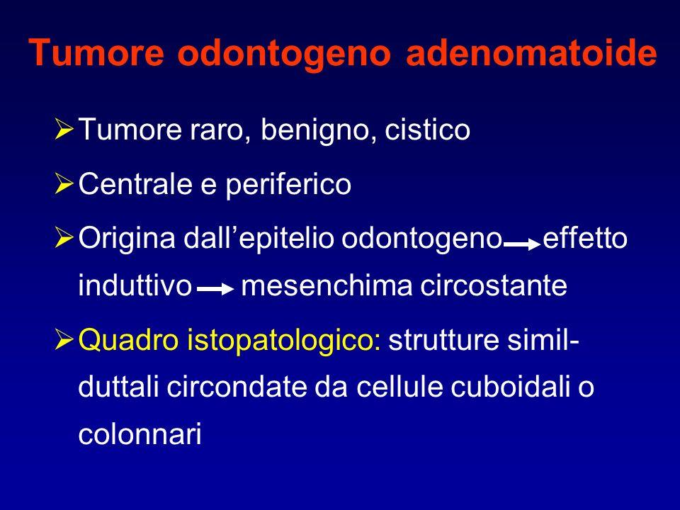 Tumore odontogeno adenomatoide Tumore raro, benigno, cistico Centrale e periferico Origina dallepitelio odontogeno effetto induttivo mesenchima circos