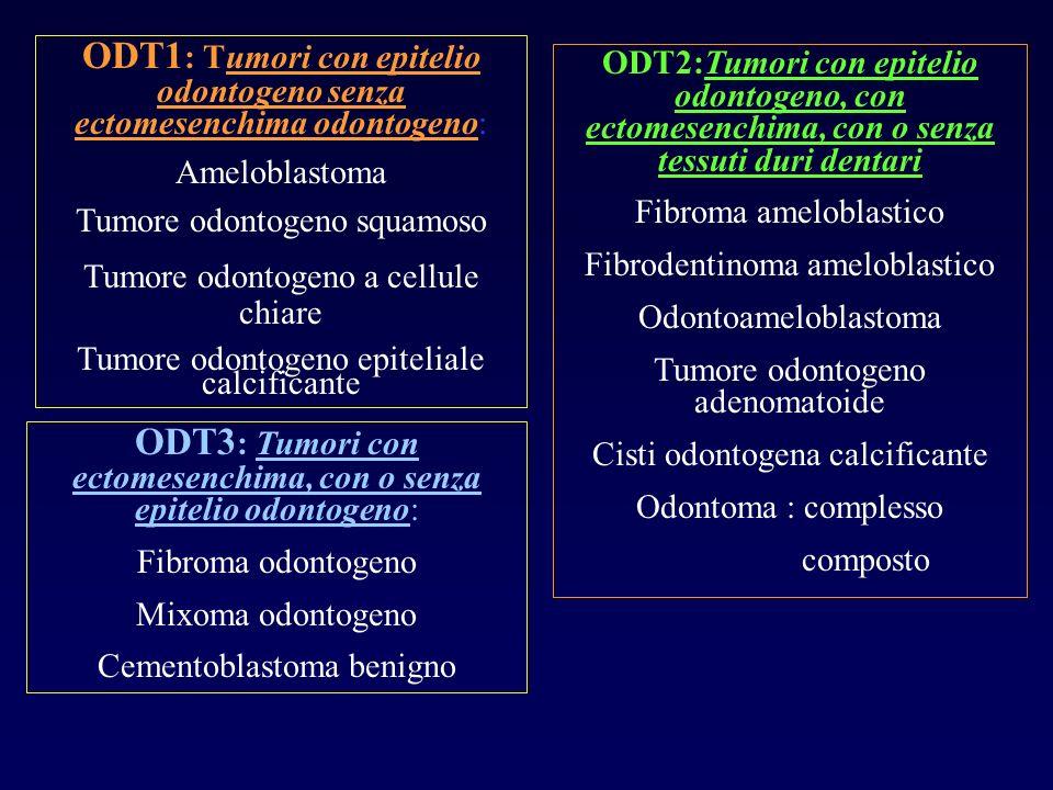 ODT1 : Tumori con epitelio odontogeno senza ectomesenchima odontogeno: Ameloblastoma Tumore odontogeno squamoso Tumore odontogeno a cellule chiare Tum