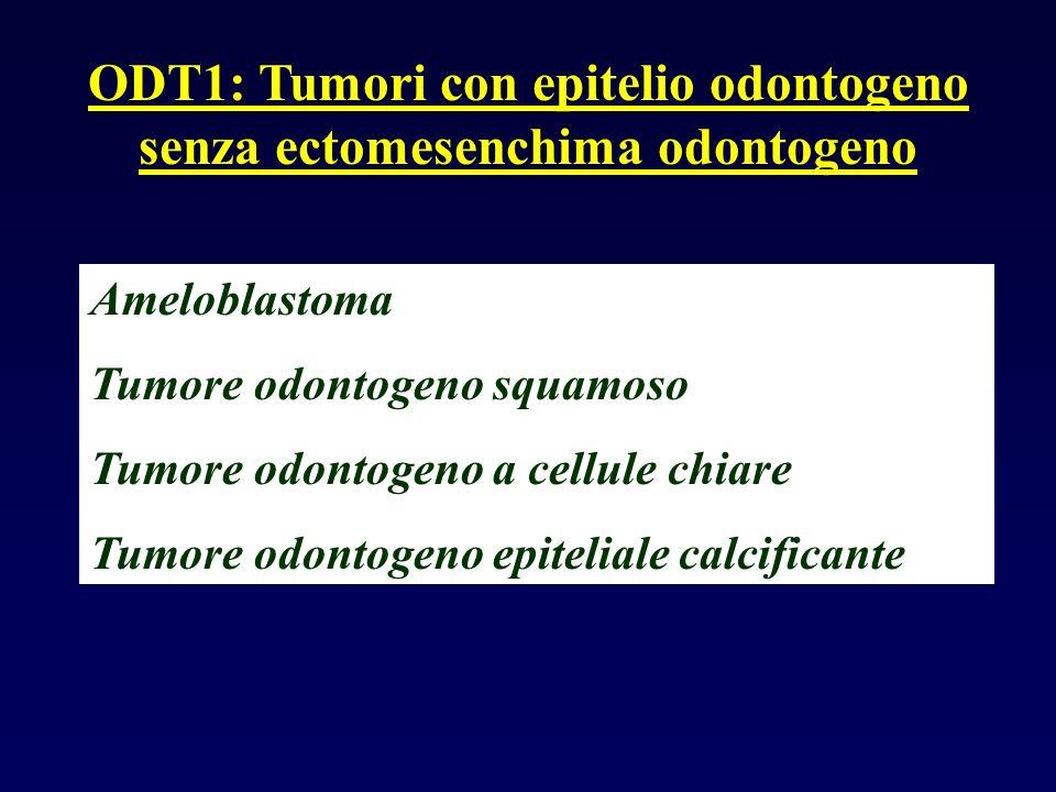 Ameloblastoma Tumore odontogeno squamoso Tumore odontogeno a cellule chiare Tumore odontogeno epiteliale calcificante ODT1: Tumori con epitelio odonto