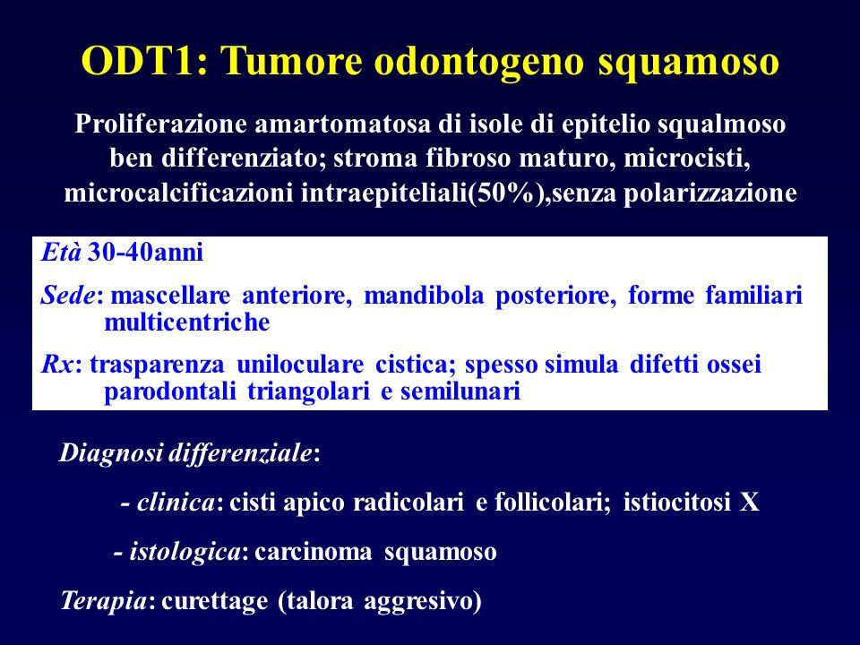 ODT1: Tumore odontogeno squamoso Proliferazione amartomatosa di isole di epitelio squalmoso ben differenziato; stroma fibroso maturo, microcisti, micr