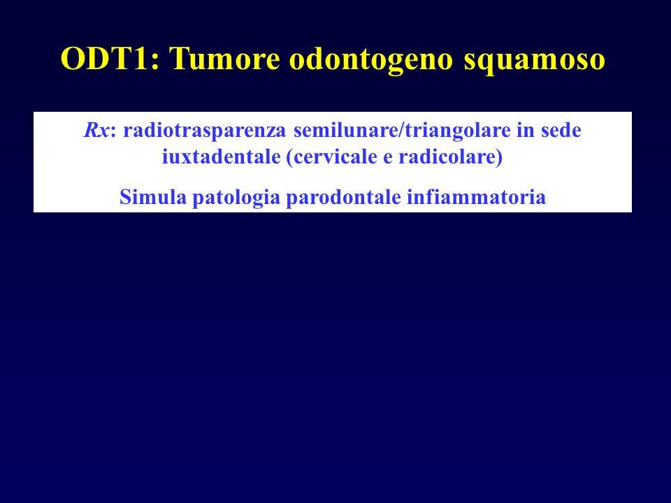ODT1: Tumore odontogeno squamoso Rx: radiotrasparenza semilunare/triangolare in sede iuxtadentale (cervicale e radicolare) Simula patologia parodontal