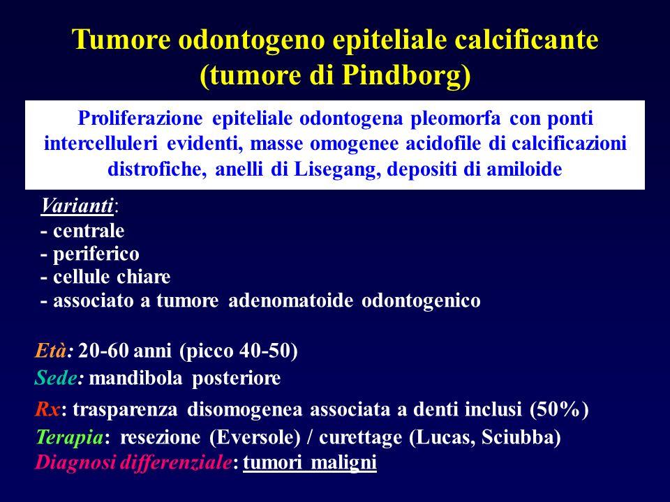 Tumore odontogeno epiteliale calcificante (tumore di Pindborg) Proliferazione epiteliale odontogena pleomorfa con ponti intercelluleri evidenti, masse