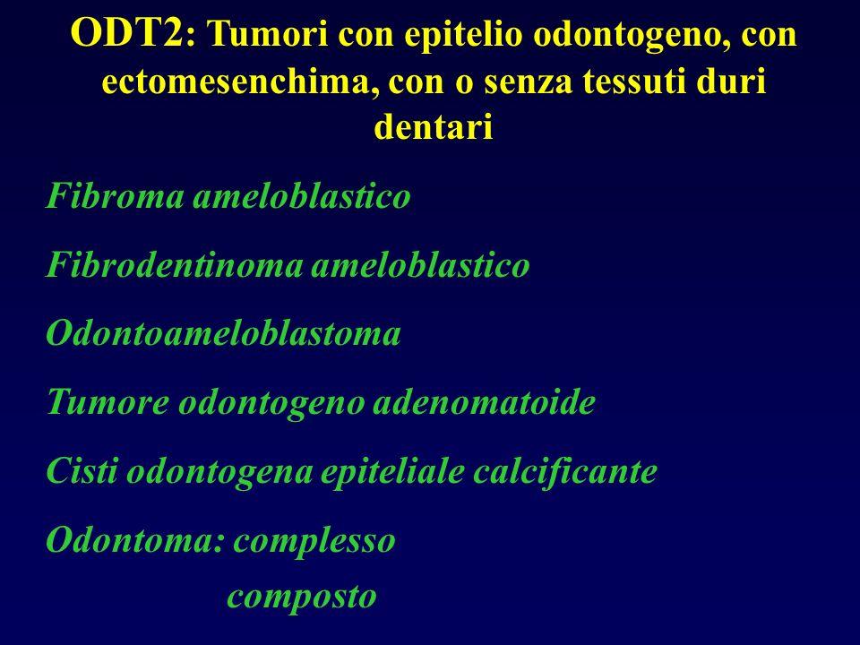 ODT2 : Tumori con epitelio odontogeno, con ectomesenchima, con o senza tessuti duri dentari Fibroma ameloblastico Fibrodentinoma ameloblastico Odontoa