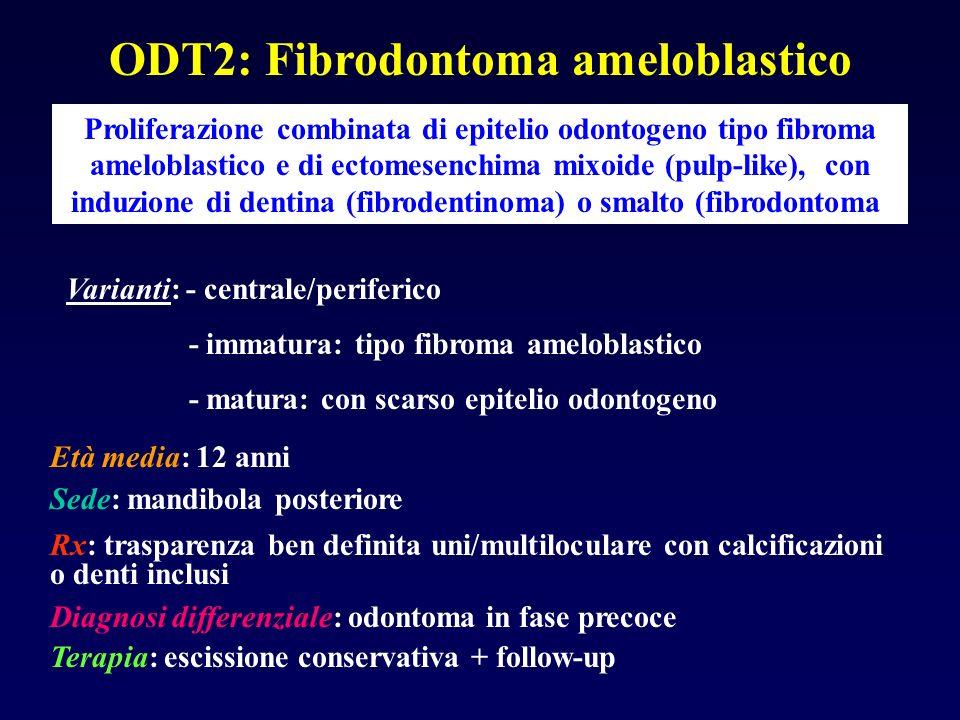ODT2: Fibrodontoma ameloblastico Proliferazione combinata di epitelio odontogeno tipo fibroma ameloblastico e di ectomesenchima mixoide (pulp-like), c