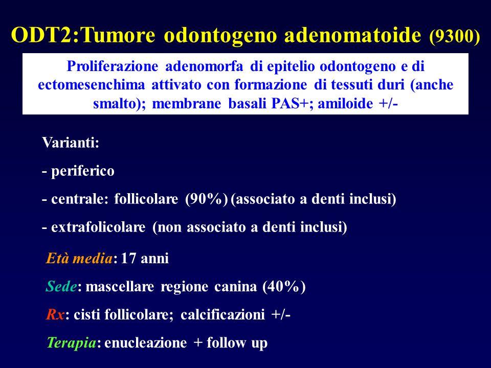 ODT2:Tumore odontogeno adenomatoide (9300) Proliferazione adenomorfa di epitelio odontogeno e di ectomesenchima attivato con formazione di tessuti dur