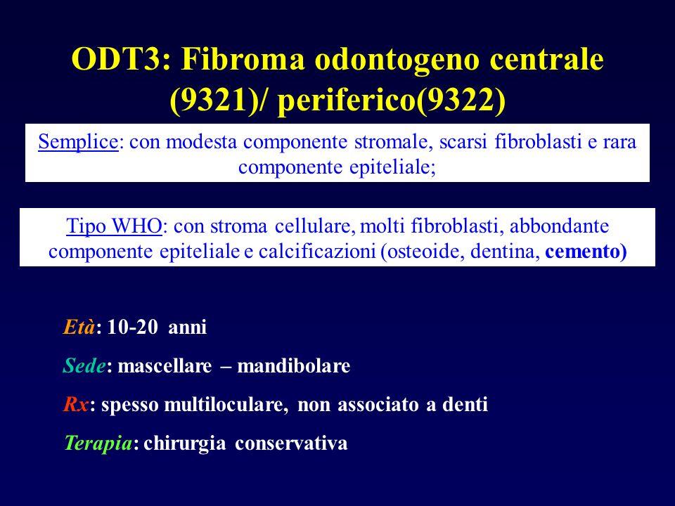 ODT3: Fibroma odontogeno centrale (9321)/ periferico(9322) Semplice: con modesta componente stromale, scarsi fibroblasti e rara componente epiteliale;