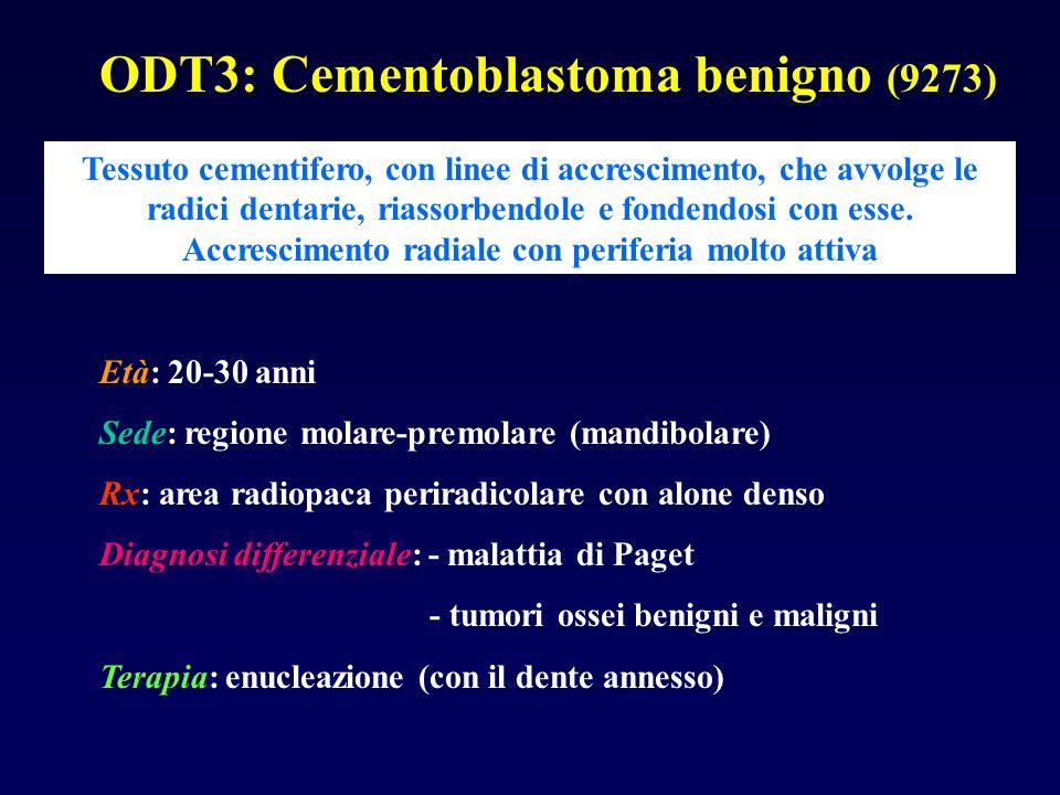 ODT3: Cementoblastoma benigno (9273) Tessuto cementifero, con linee di accrescimento, che avvolge le radici dentarie, riassorbendole e fondendosi con