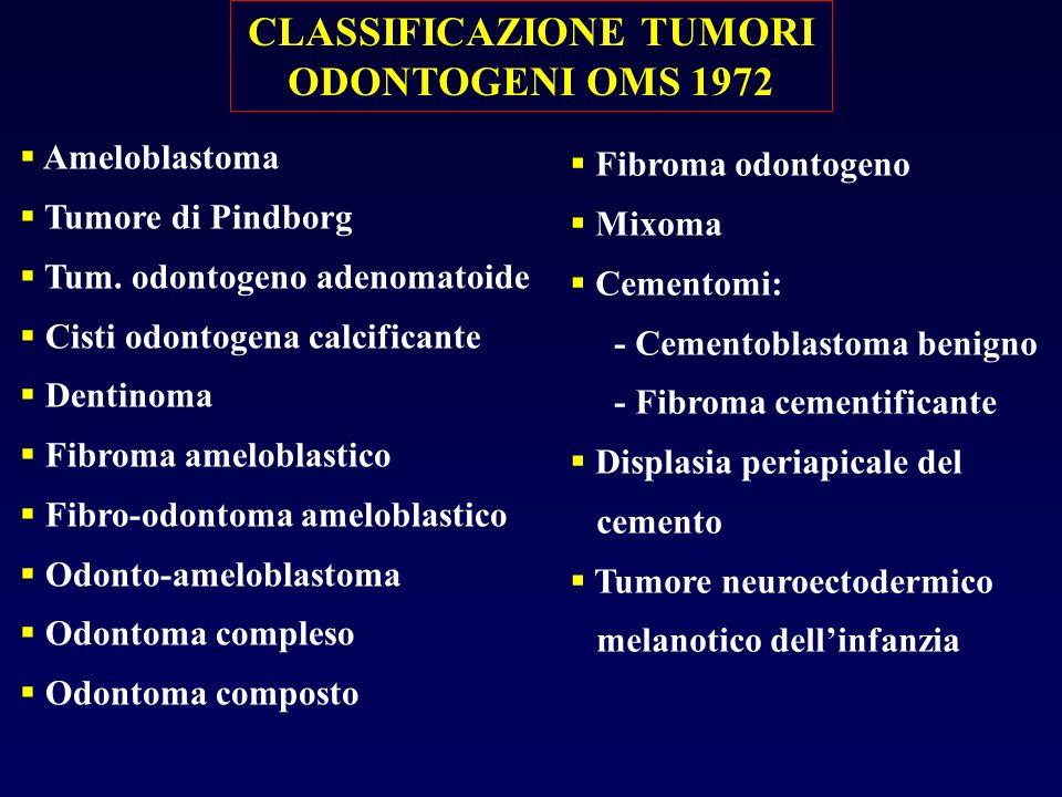 CLASSIFICAZIONE TUMORI ODONTOGENI OMS 1972 Ameloblastoma Tumore di Pindborg Tum. odontogeno adenomatoide Cisti odontogena calcificante Dentinoma Fibro