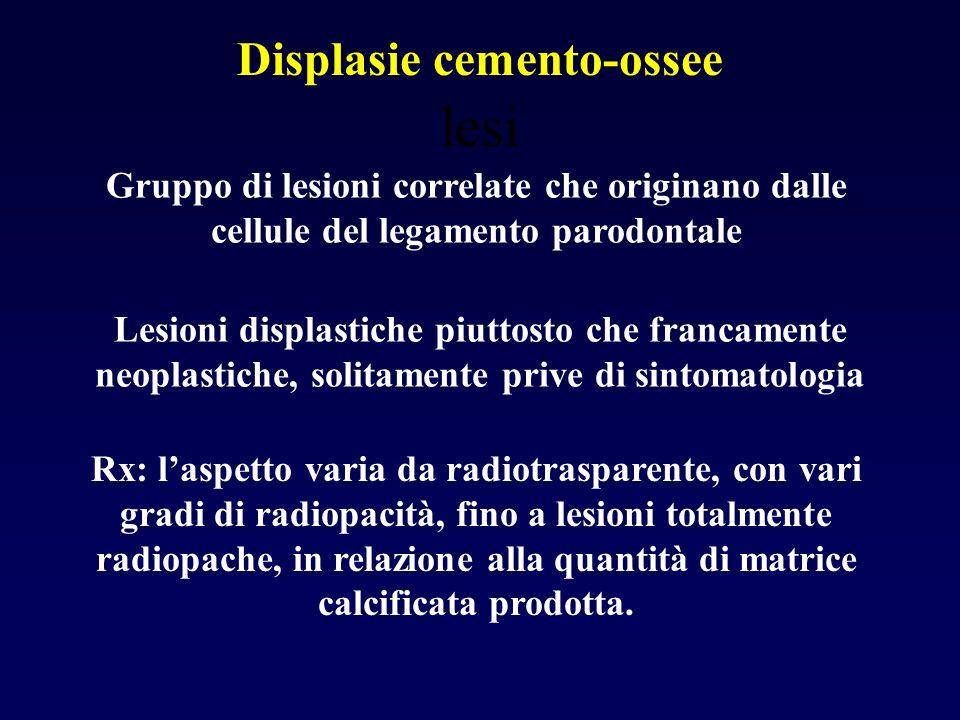 lesi Displasie cemento-ossee Gruppo di lesioni correlate che originano dalle cellule del legamento parodontale Lesioni displastiche piuttosto che fran