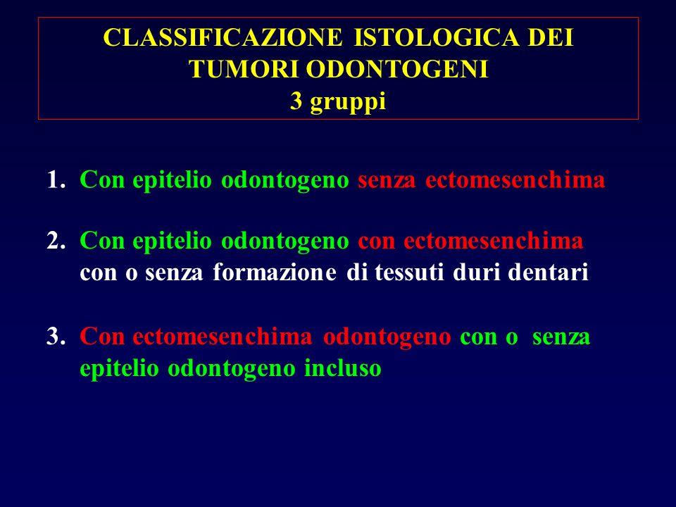 CLASSIFICAZIONE ISTOLOGICA DEI TUMORI ODONTOGENI 3 gruppi 1. Con epitelio odontogeno senza ectomesenchima 2. Con epitelio odontogeno con ectomesenchim