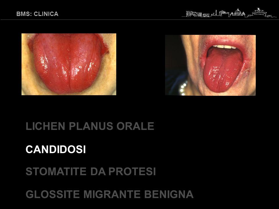 BMS: CLINICA GLOSSITE MIGRANTE BENIGNA LICHEN PLANUS ORALE CANDIDOSI STOMATITE DA PROTESI