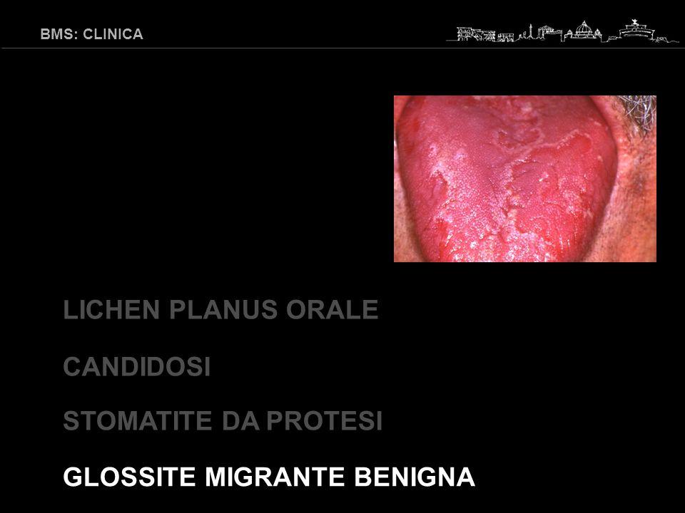 BMS: CLINICA dolore urente riferito alla lingua o ad altre sedi della mucosa orale associato ad un suo aspetto clinico normale e ad esami di laboratorio nella norma International Association for the Study of Pain, 1994
