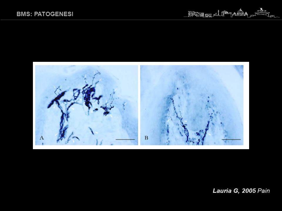 BMS: EZIO-PATOGENESI E oggi possibile ritenere che, sulla base degli studi che dimostrano alterazioni neuropatiche di tipo periferico e/o centrale, queste alterazioni/degenerazioni sostengano la patogenesi della BMS.