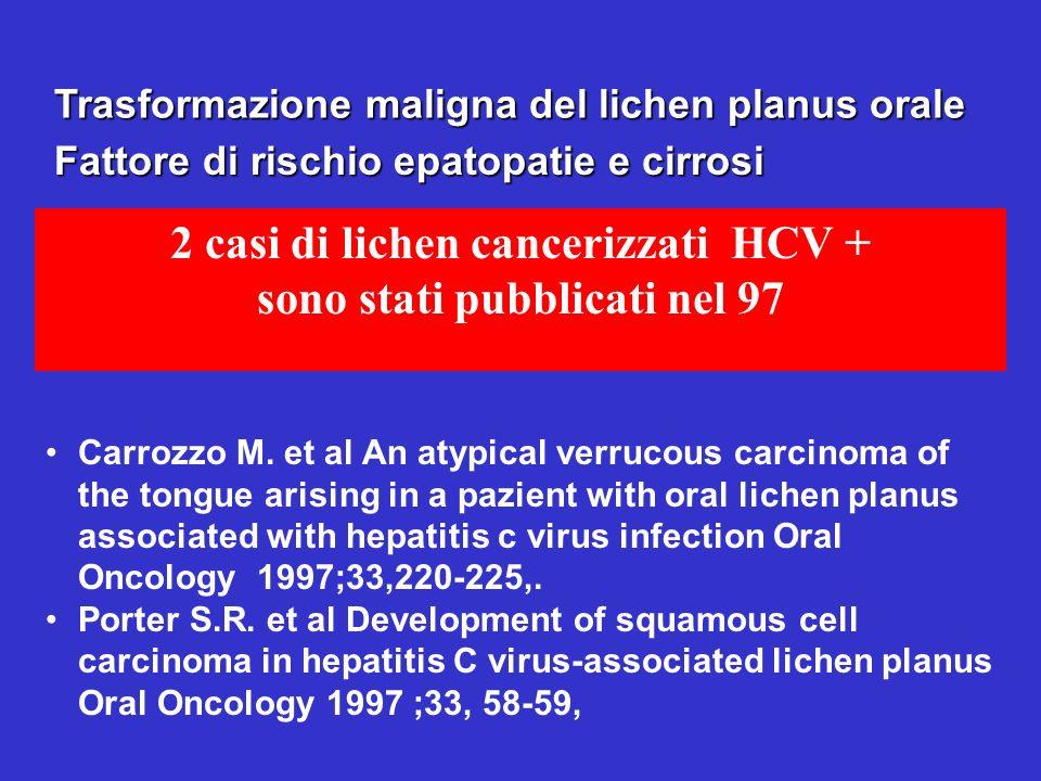 Trasformazione maligna del lichen planus orale 2 casi di lichen cancerizzati HCV + sono stati pubblicati nel 97 Fattore di rischio epatopatie e cirros