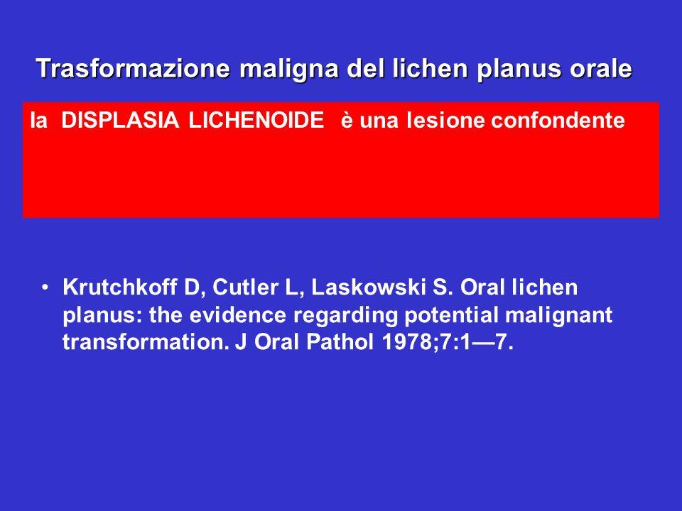 Trasformazione maligna del lichen planus orale Ia DISPLASIA LICHENOIDE è una lesione confondente Trasformazione maligna del lichen planus orale Krutch