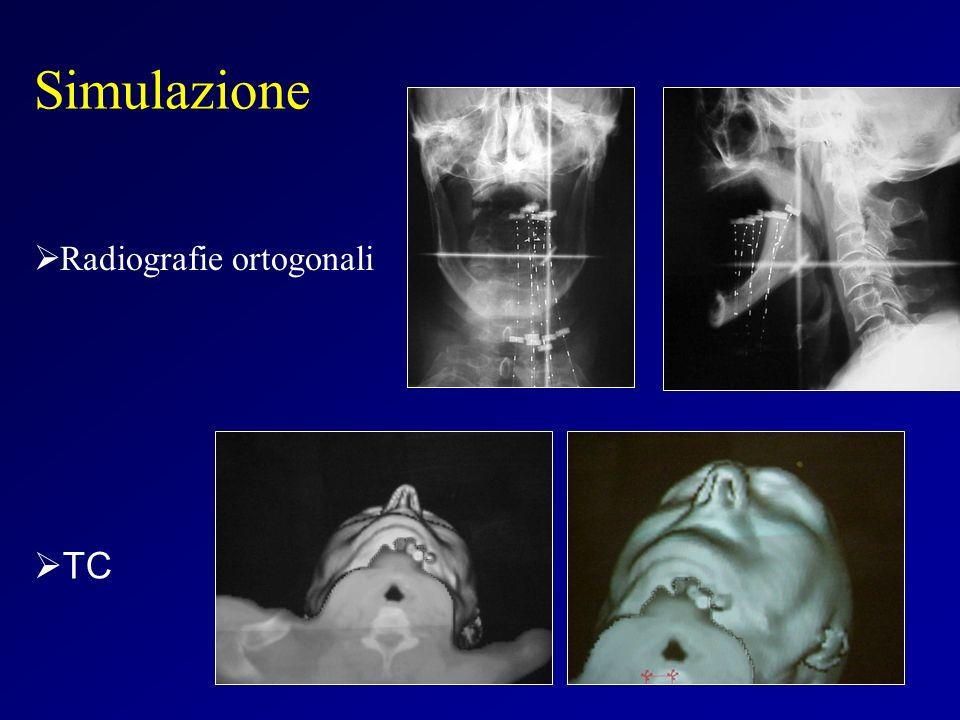 Radiografie ortogonali Simulazione TC