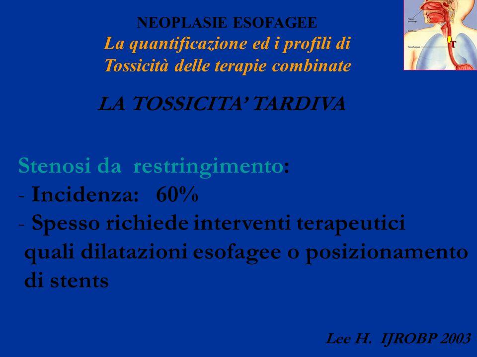 T NEOPLASIE ESOFAGEE La quantificazione ed i profili di Tossicità delle terapie combinate LA TOSSICITA TARDIVA Stenosi da restringimento: - Incidenza: