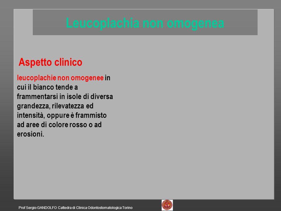 Aspetto clinico leucoplachie non omogenee in cui il bianco tende a frammentarsi in isole di diversa grandezza, rilevatezza ed intensità, oppure è frammisto ad aree di colore rosso o ad erosioni.