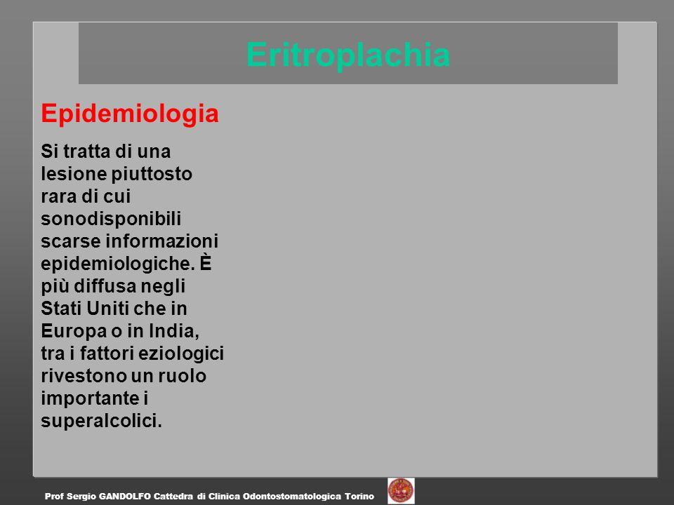 Epidemiologia Si tratta di una lesione piuttosto rara di cui sonodisponibili scarse informazioni epidemiologiche. È più diffusa negli Stati Uniti che