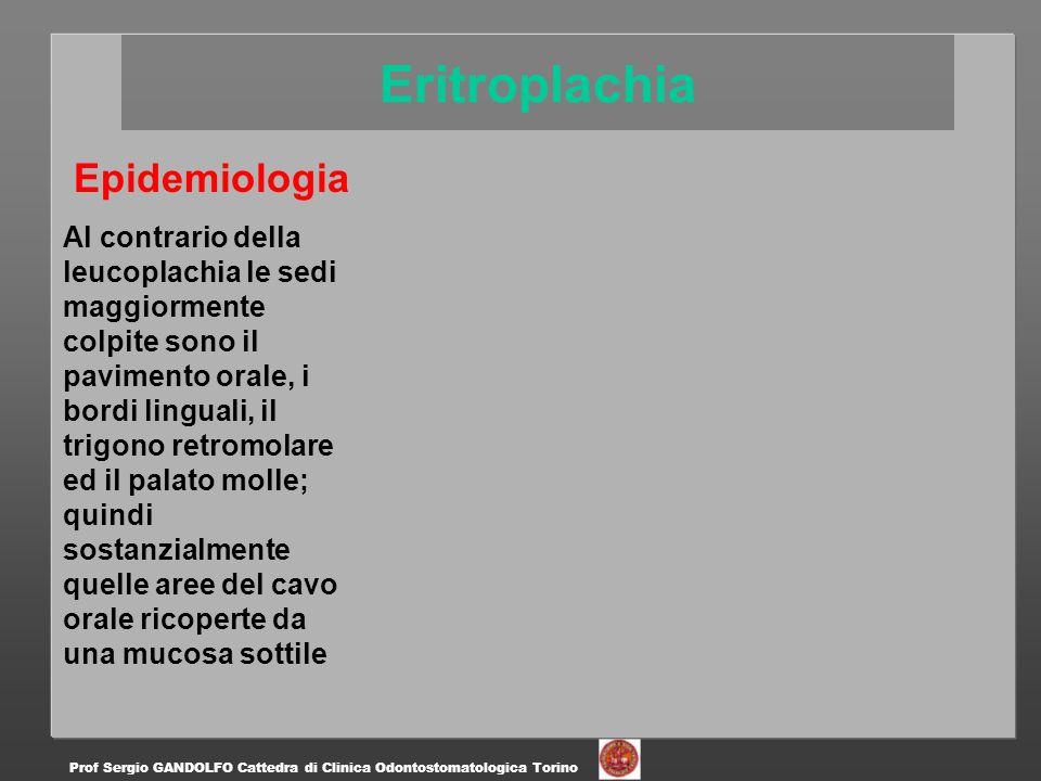Epidemiologia è comunque possibile la sua insorgenza in qualsiasi sede.
