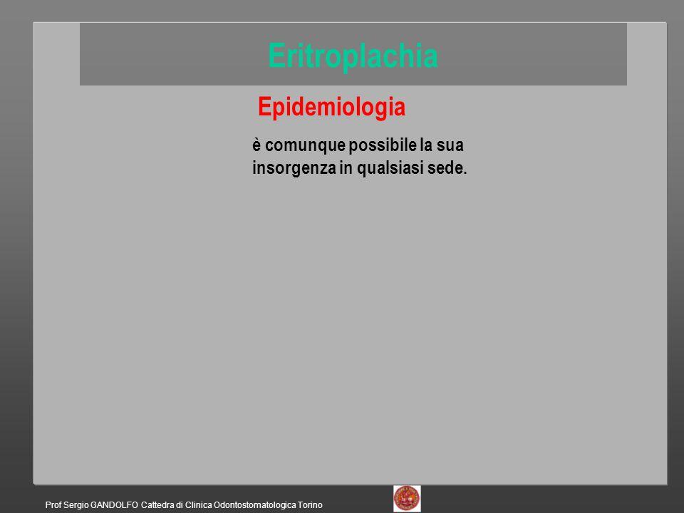 Epidemiologia è comunque possibile la sua insorgenza in qualsiasi sede. Eritroplachia Prof Sergio GANDOLFO Cattedra di Clinica Odontostomatologica Tor