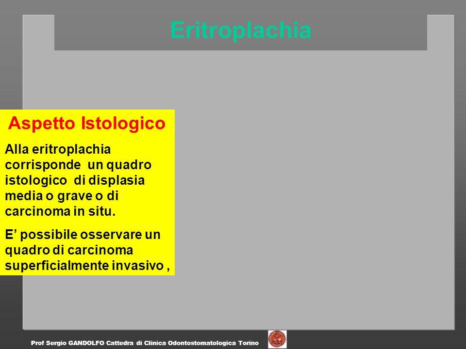 Eritroplachia Prof Sergio GANDOLFO Cattedra di Clinica Odontostomatologica Torino Aspetto Istologico Alla eritroplachia corrisponde un quadro istologi