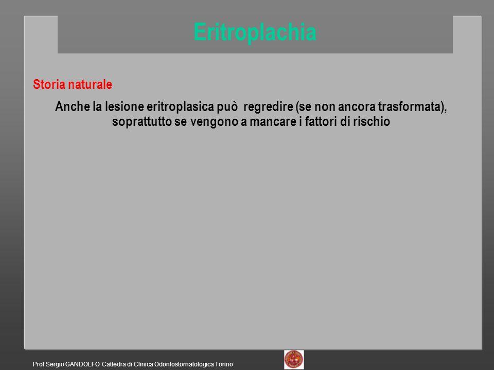 Storia naturale Eritroplachia Prof Sergio GANDOLFO Cattedra di Clinica Odontostomatologica Torino Anche la lesione eritroplasica può regredire (se non