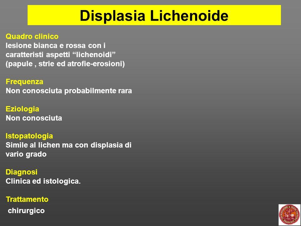 Leucoplachia Candidosica Quadro clinico È una candidosi cronica il cui aspetto clinico è indistinguibile da una leucoplachia non omogenea Frequenza Non conosciuta probabilmente rara Eziologia Candida Albicans Fumo.