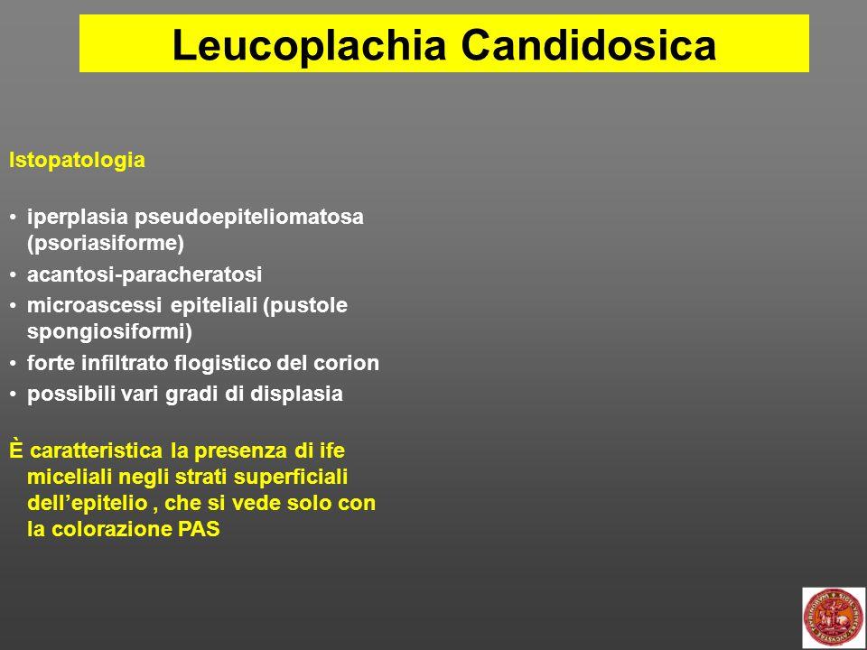 Leucoplachia Candidosica DIAGNOSI: IMPOSSIBILE in base al solo aspetto clinico di leuco PROBABILE in presenza di 1.
