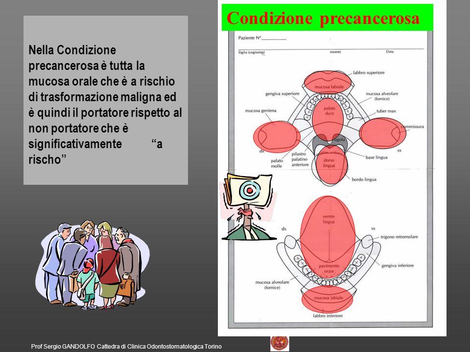 Prof Sergio GANDOLFO Cattedra di Clinica Odontostomatologica Torino Lesione precancerosa Nella Lesione precancerosa è solo la parte malata della mucosa orale che è significativamente a rischio di trasformazione maligna