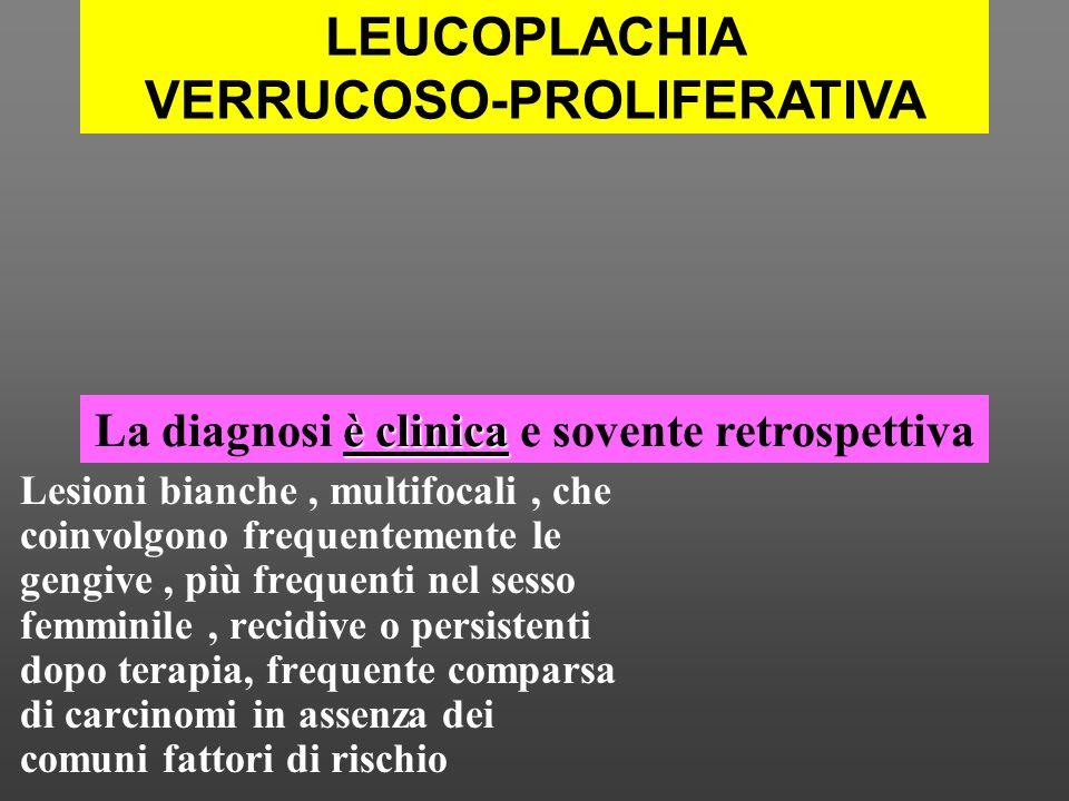 LEUCOPLACHIA SENZA DISPLASIA IPERPLASIA VERRUCOSA IPERPLASIA VERRUCOSA CON DISPLASIA CARCINOMA VERRUCOSO CARCINOMA INVASIVO LESIONE CON DISPLASIA listologia è varia e non permette la diagnosi LEUCOPLACHIA VERRUCOSO-PROLIFERATIVA
