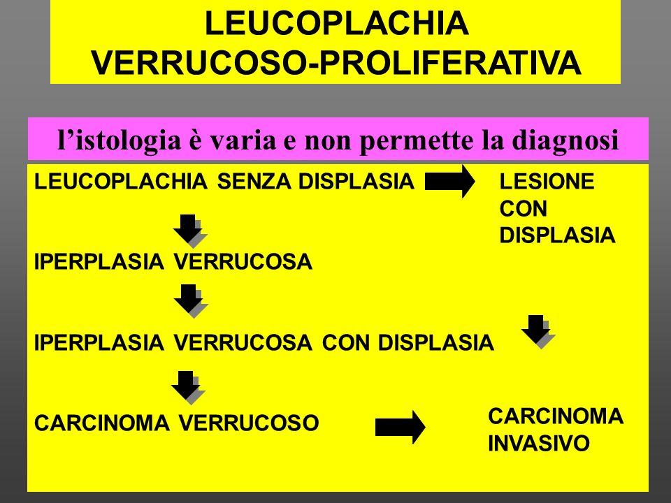 LEUCOPLACHIA SENZA DISPLASIA IPERPLASIA VERRUCOSA IPERPLASIA VERRUCOSA CON DISPLASIA CARCINOMA VERRUCOSO CARCINOMA INVASIVO LESIONE CON DISPLASIA list