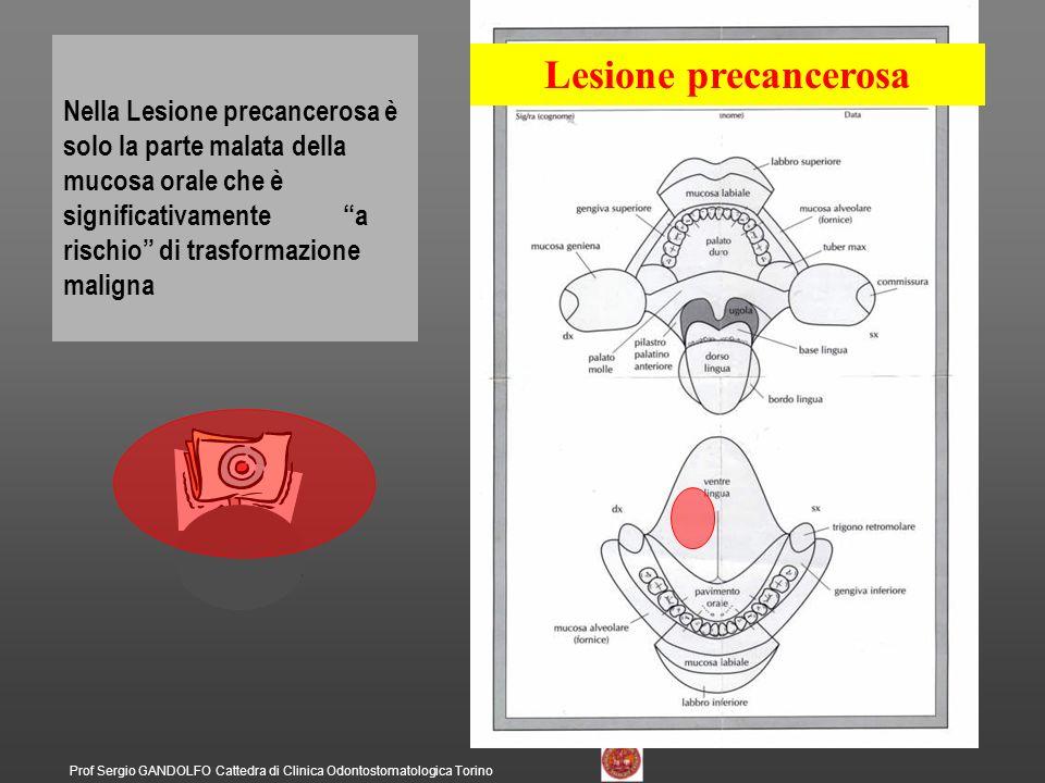 Prof Sergio GANDOLFO Cattedra di Clinica Odontostomatologica Torino Lesione precancerosa Nella Lesione precancerosa è solo la parte malata della mucos