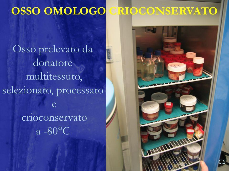 OSSO OMOLOGO CRIOCONSERVATO CS Osso prelevato da donatore multitessuto, selezionato, processato e crioconservato a -80°C