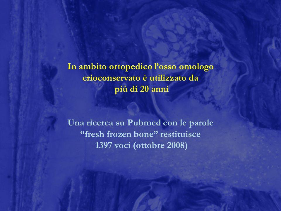 In ambito ortopedico losso omologo crioconservato è utilizzato da più di 20 anni Una ricerca su Pubmed con le parole fresh frozen bone restituisce 139