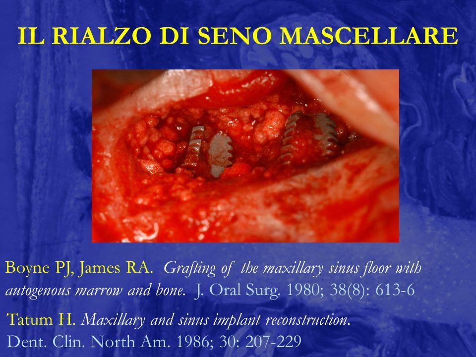 IL RIALZO DI SENO MASCELLARE Boyne PJ, James RA. Grafting of the maxillary sinus floor with autogenous marrow and bone. J. Oral Surg. 1980; 38(8): 613