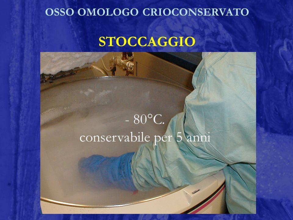 OSSO OMOLOGO CRIOCONSERVATO STOCCAGGIO - 80°C. conservabile per 5 anni