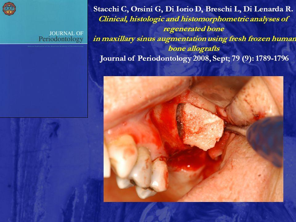 Stacchi C, Orsini G, Di Iorio D, Breschi L, Di Lenarda R. Clinical, histologic and histomorphometric analyses of regenerated bone in maxillary sinus a