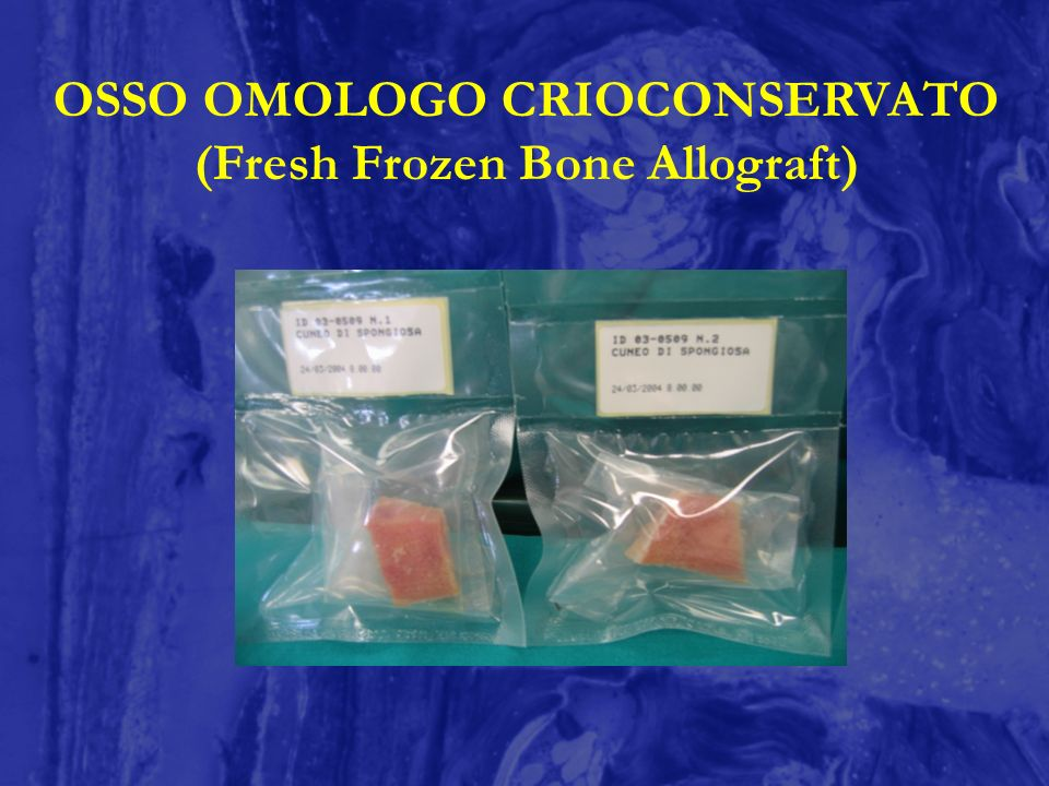 OSSO OMOLOGO CRIOCONSERVATO (Fresh Frozen Bone Allograft)