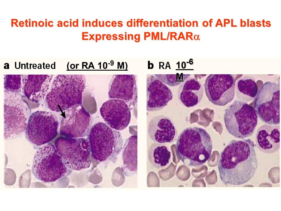 Retinoic acid induces differentiation of APL blasts Expressing PML/RAR Expressing PML/RAR 10 -6 M (or RA 10 -9 M)