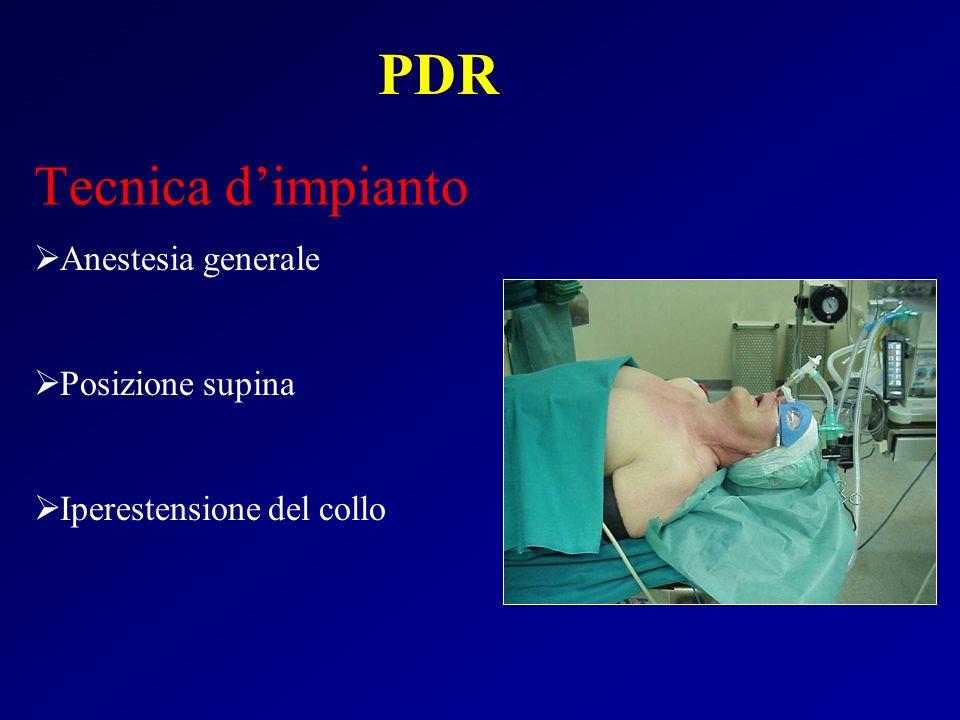 Anestesia generale Posizione supina Iperestensione del collo Tecnica dimpianto PDR