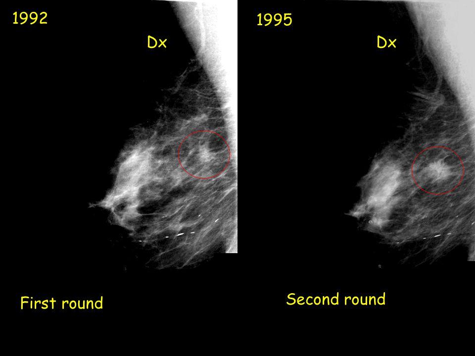 1992 1995 First round Dx Second round